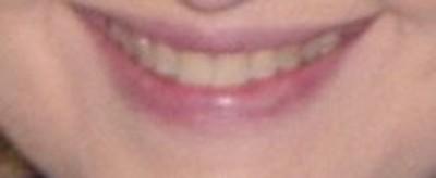smile 14