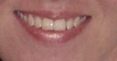 smile 15