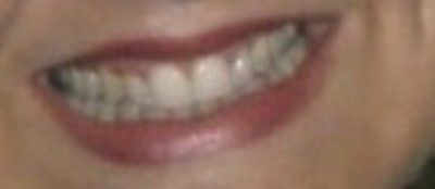 smile 19
