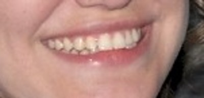 smile 8