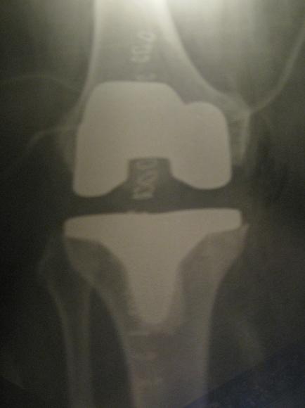 knee front
